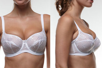 Cup size is too small if the breast bulges over or you have to adjust the bra several times during a day.